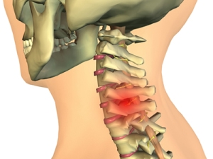 Cervical spine, Cervical neck pain, neck pain,