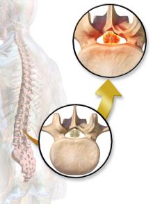 Spinal_Stenosis